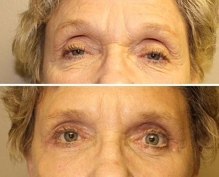 Case #22: Upper and lower lid blepharoplasty. Post-operative photo at 2 months.