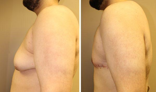 Case #3: Gynecomastia preoperative photo on the left. Postoperative photo on the right at 2 months (scar is still red).