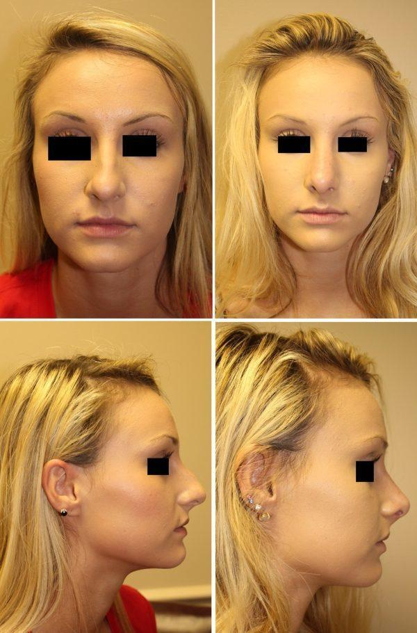 Case #4: Cosmetic Rhinoplasty. Postoperative photos (on the right) at 6 weeks.