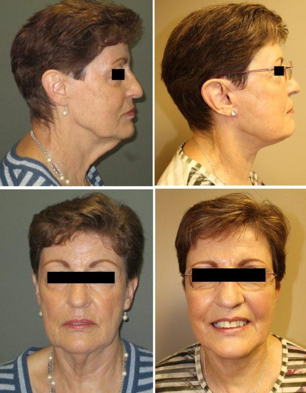 case 22postoperative photos at 6 months