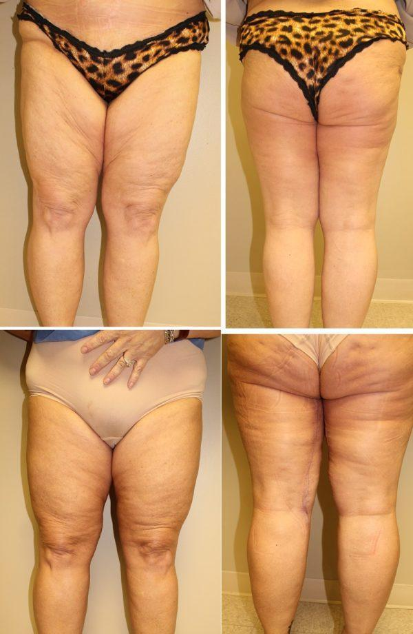 Case #3: Thigh lift. Postoperative photos at 6 months.